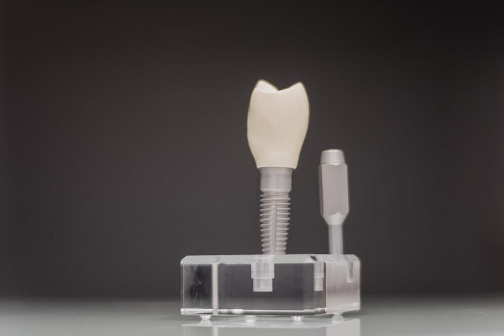 Mund-, Kiefer-, Gesichtschirurgie - Coburg - Feller / Otte - Leistungen - Implantologie